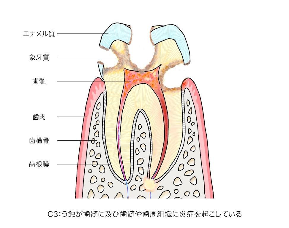 ゆう歯科クリニック・う蝕(虫歯...